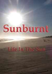 Sunburnt – Life In The Sun
