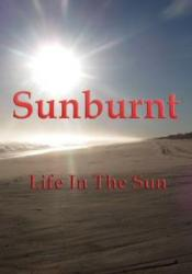 Sunburnt – Life In The Sun